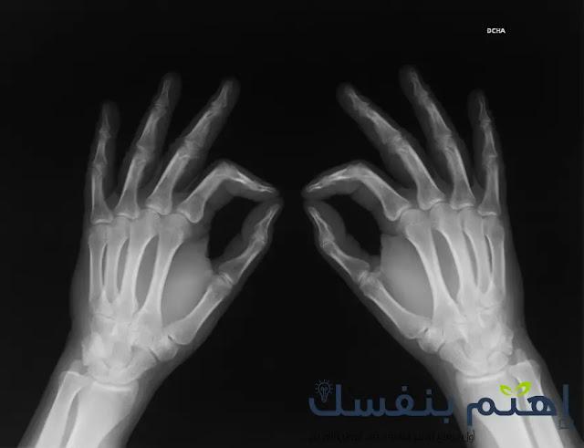 أعراض هشاشة العظام : الأسباب و الوقاية و العلاج