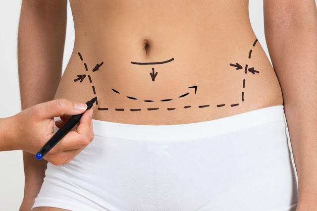 liposuction vs coolsculpting by Barbies Beauty Bits