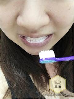 - IMG 7778 - 【#牙齒】C+美の分享 || 一次過抗敏感 + 美白–美國進口Crest溫和美白牙膏系列