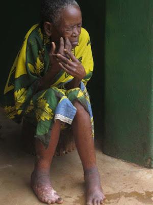 Leper from Morogoro Village