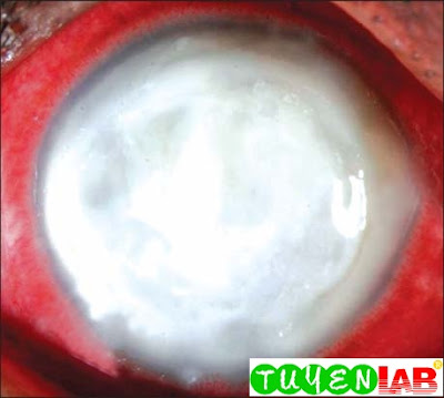 Fig. 2.16: Fungal corneal ulcers that has involved the entire cornea. The prognosis is poor and would require a penetrating keratoplasty