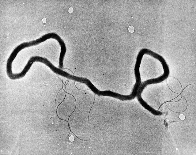 VDRL dan TPHA Reactive Penularan Sifilis