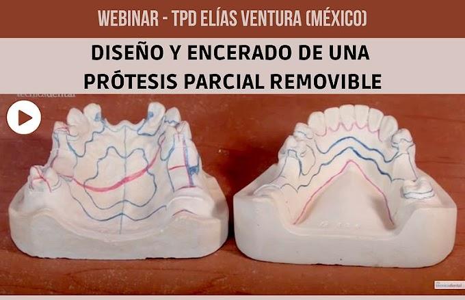 WEBINAR: Diseño y Encerado de una Prótesis Parcial Removible - TPD Elías Ventura (México)