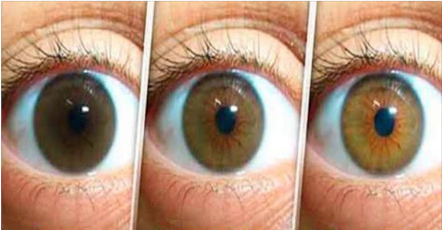 Açafrão pode proteger seus olhos da catarata e glaucoma. VEJA