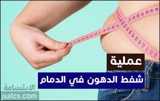 تكلفة عملية شفط الدهون في الدمام