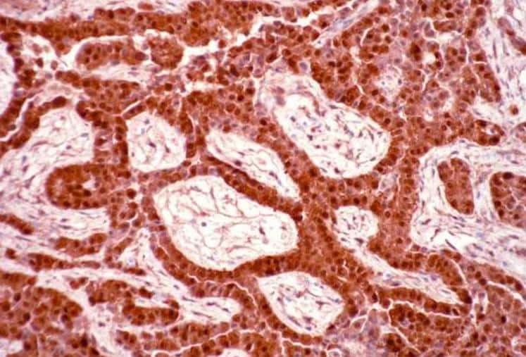 Epithelioid Malignant Mesothelioma