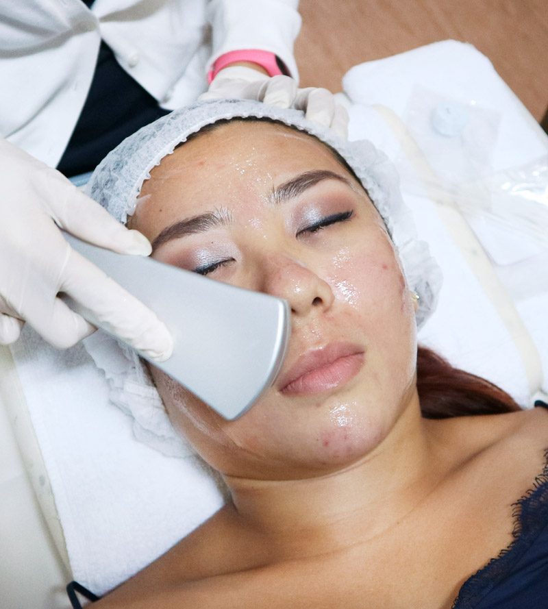 NOVU Europa Acne Treatment Review Singapore