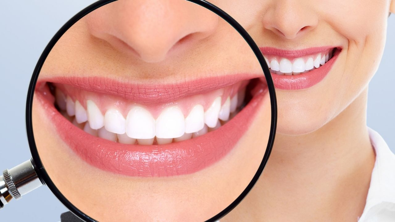 All About Teeth Whitening