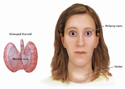 bahaya penyakit hipertiroid