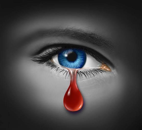 Kasus Langka, Gadis 11 Tahun di India Mengeluarkan Air Mata Darah