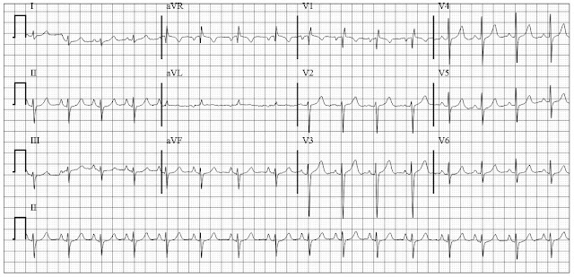 ECG of a patient with chronic bronchitis