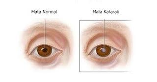 Cara mengobati mata katarak sampai sembuh total