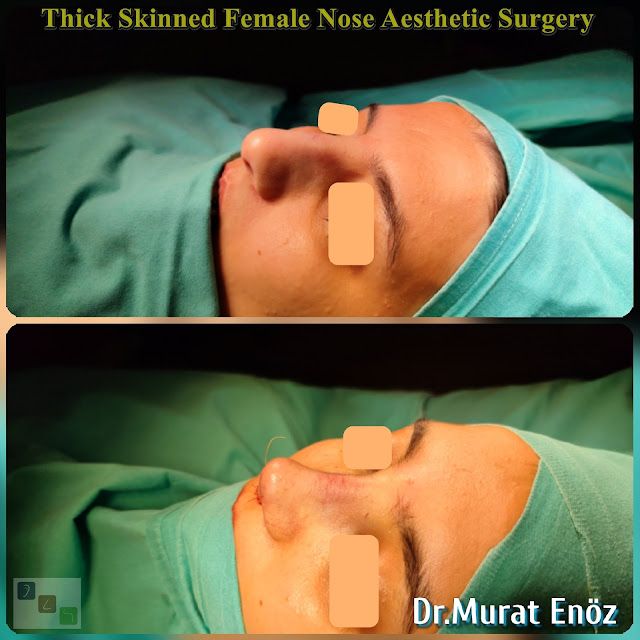 female nose asthetic surgery