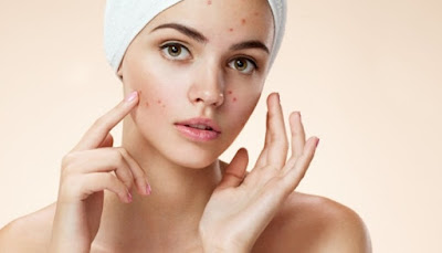 natural remedies for acne on the face