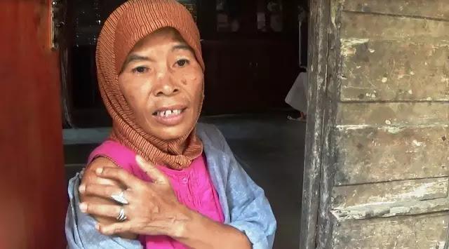 2 Tahun Bekerja Menjadi TKW Wanita Ini Hanya Mendapat Siksaan Fisik Berujung Cacat dibagian Jari Tangannya.