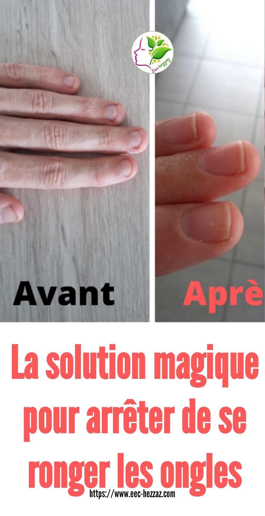 La solution magique pour arrêter de se ronger les ongles
