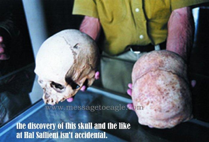 Evidencia de cráneos alargados encontrados en Hipogeo. Fueron miles de esqueletos hallados, pero inexplicablemente desaparecieron casi todos. ¿Ocultamiento de una verdad incómoda?