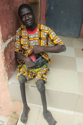 Lamentation of A Cripple: Ladies Dupe Me At Will...How I Escaped Being Lynched