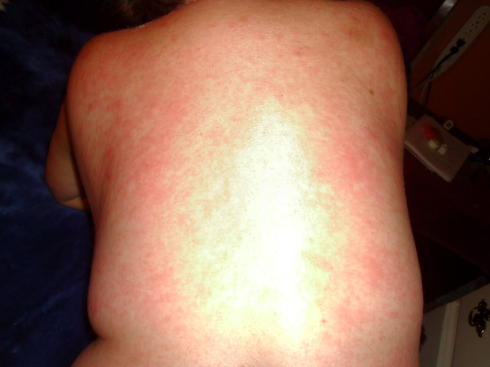 Hepatitis C is no longer a Secret: MY RASH from the ... - photo#22