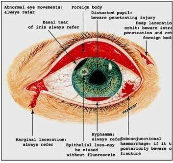 Ai có nguy cơ xuất huyết mắt?