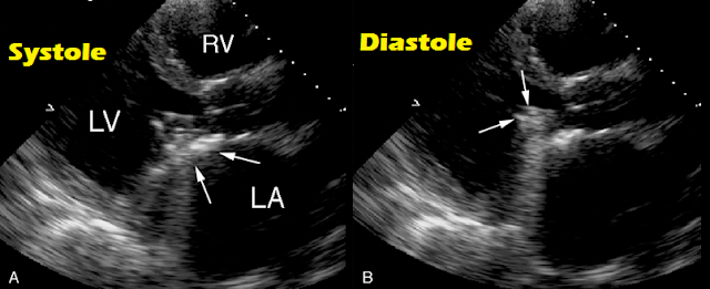 Starr Edwards Mitral Prosthesis on echocardiography