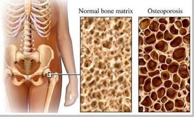 Osteoporosis (penyakit kekurangan kalsium pada tulang) - berbagaireviews.com