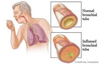 Obat Penyakit Bronkitis Paling Ampuh