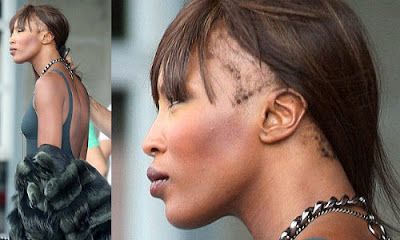 Hair Setback Series (2013) // Repairing Thinning Edges