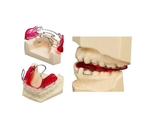 Ortodoncia Maxilar