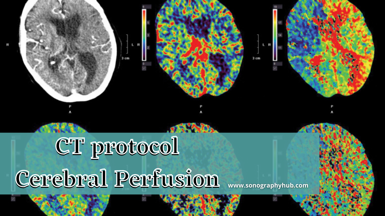 CT cerebral perfusion scan image
