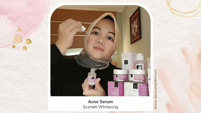 Acne Serum