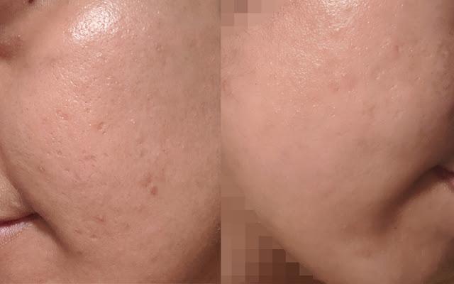 Pengalaman Guna Ephyra Skin Nano Serum dan Ephyra Skin Bar