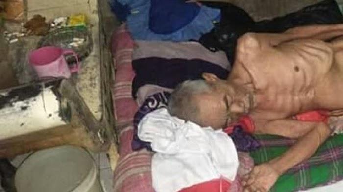Badan Tinggal Tulang, Kakek Miskin Punya Kartu Sejahtera Tak Dapat Bansos