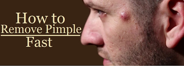 How to remove Pimples Fast at home