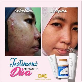 Produk Skincare Untuk Mengecilkan Liang Pori Kulit Muka Besar