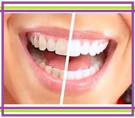 12 Cara Memutihkan Gigi Kuning Secara Alami 100 Work Eksanti354