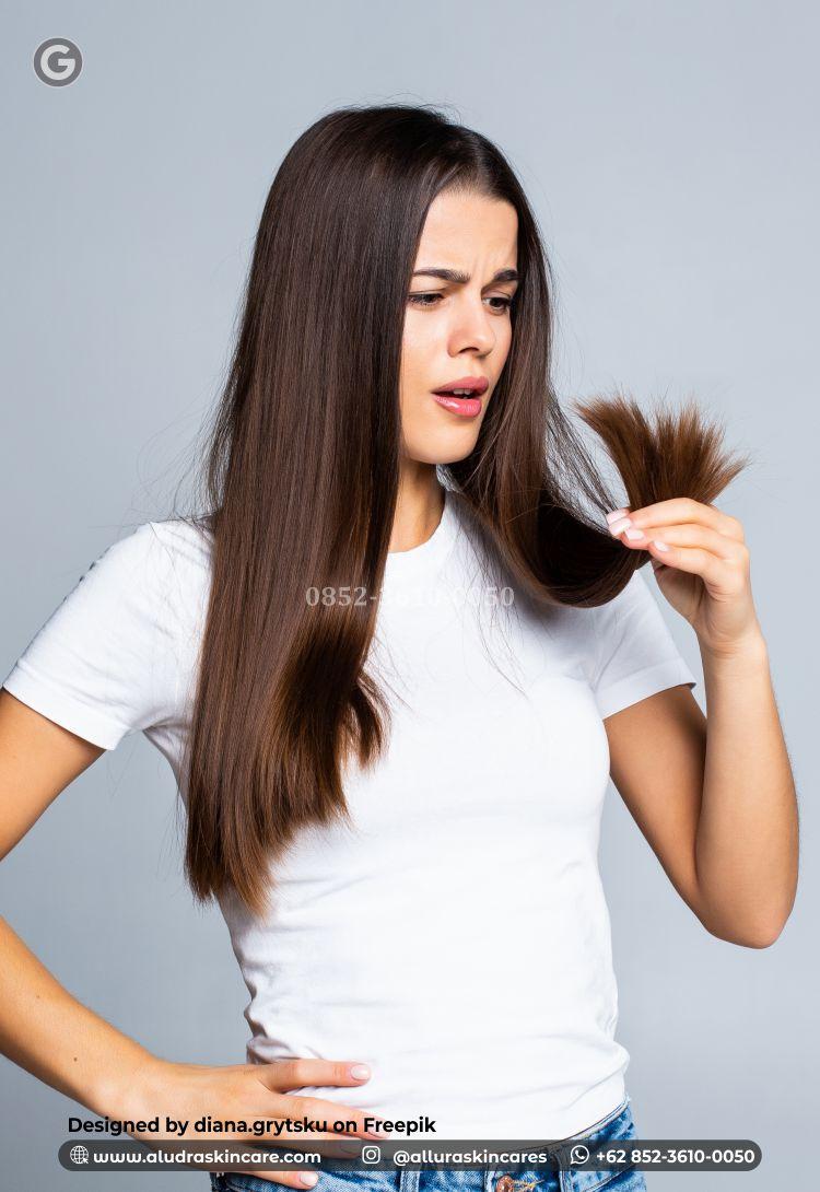 5 Penyebab Rambut Rontok Terus Menerus Hingga Kebotakan