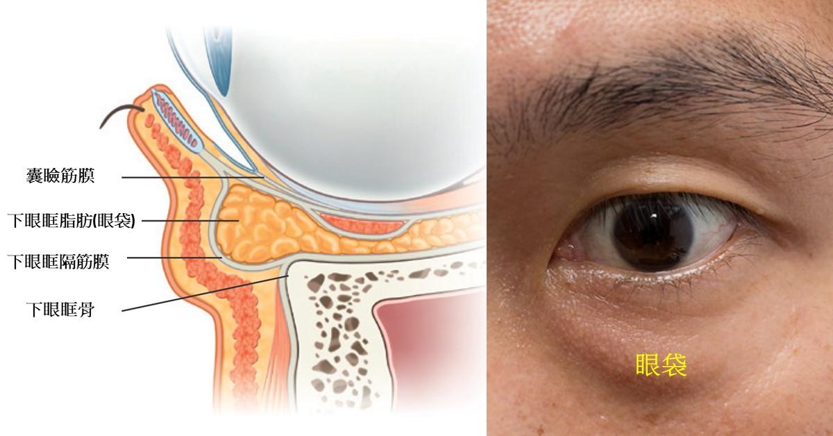 高雄眼袋手術推薦