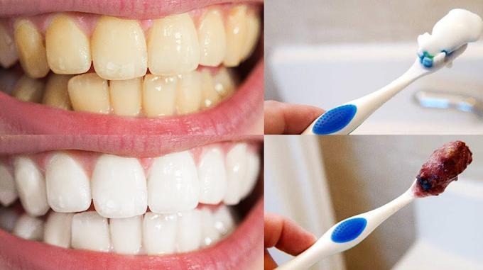 9 Astuces pour avoir des dents blanches et un sourire hollywoodien