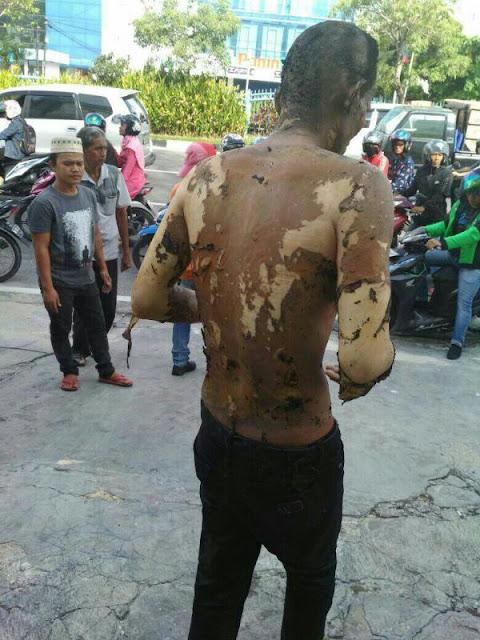 Diduga Masalah Hutang, Pemuda di Pekanbaru Ini Dibakar