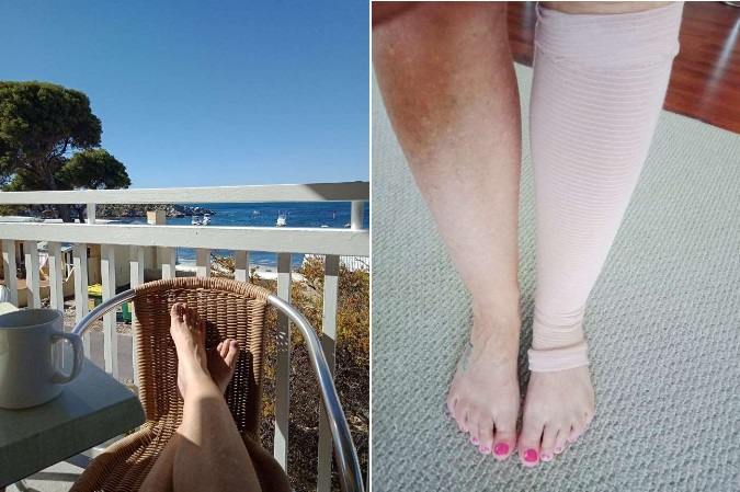 From sunshine and freely moving legs - to home time and a torn calf muscle.