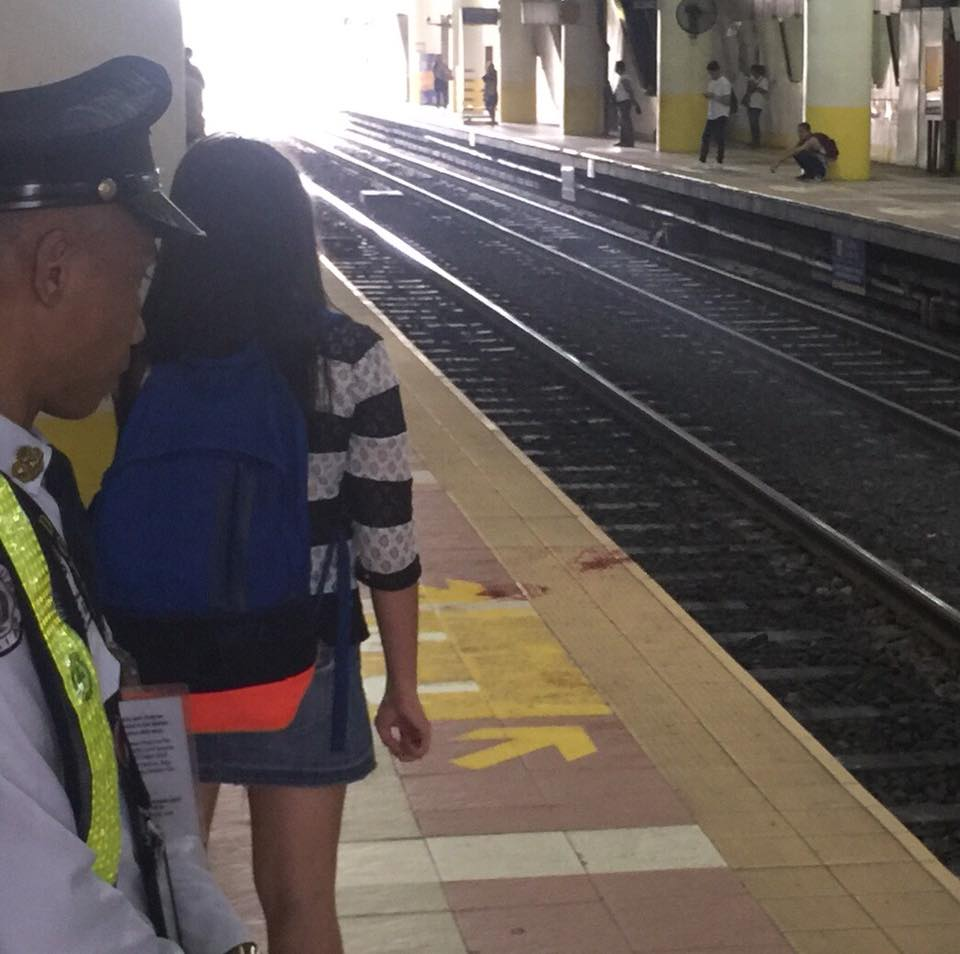 Doctors reattach severed arm of woman after MRT accident