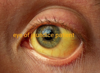 Jaundice definition , Type , sign , symptoms and management .