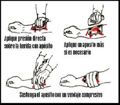 Cara Menghentikan Pendarahaan Dalam Keadaan Survial