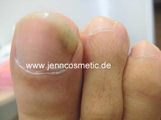 Nagelpilz-ansteckend-zehennaegel-1-jenncosmetic