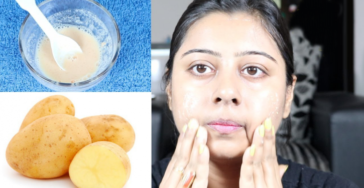 Here's How I Clear My Face With Potato