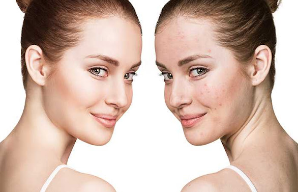 Skin Purging