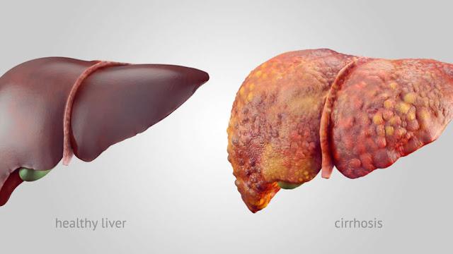karaciğeriniz alkol içmeseniz bile alkolden zarar görebilir
