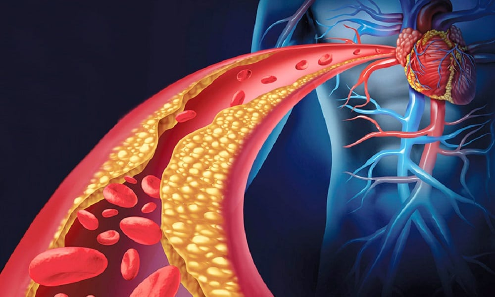Remédio caseiro para colesterol alto beringela