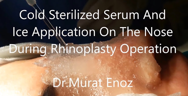 Cold sterilized serum application on the nose - Ice application on the nose during the rhinoplasty operation - Reducing of  bleeding during and after nose job surgery - Cold application benefits during the nasal aesthetic operations - Cold application during the nose tip plasty